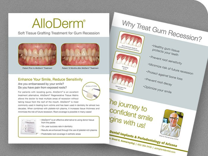 AlloDerm Procedure Info Sheet
